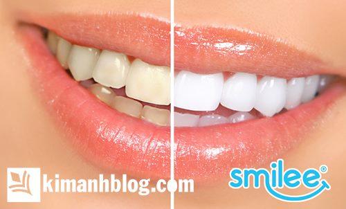 review bộ kit làm trắng răng smilee